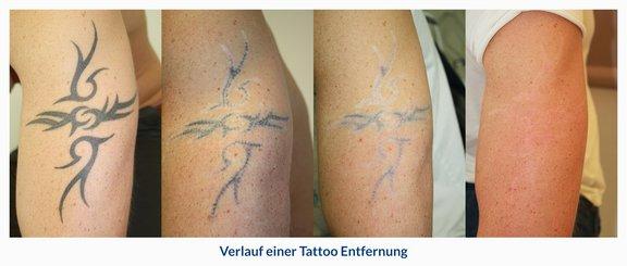 Tattooentfernung Düsseldorf Facts Ablauf Kosten Dr