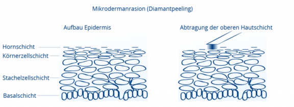 Illustration Mikrodermabrasion