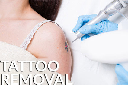 Tattoo Removal - Dr. Hilton & Partner