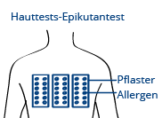 Illustration Epikutantest